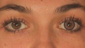 LD2PI pink kontaktlinse i brunt øje