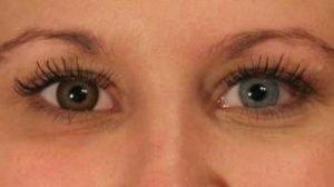 Brun kontaktlinse i et lyst øje